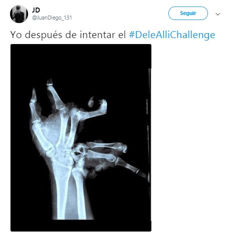 Imagen - ¿Qué es el #DeleAlliChallenge?