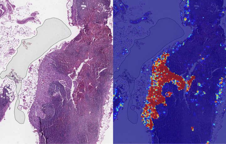 Imagen - La inteligencia artificial de Google podría detectar el cáncer de mama con mayor precisión