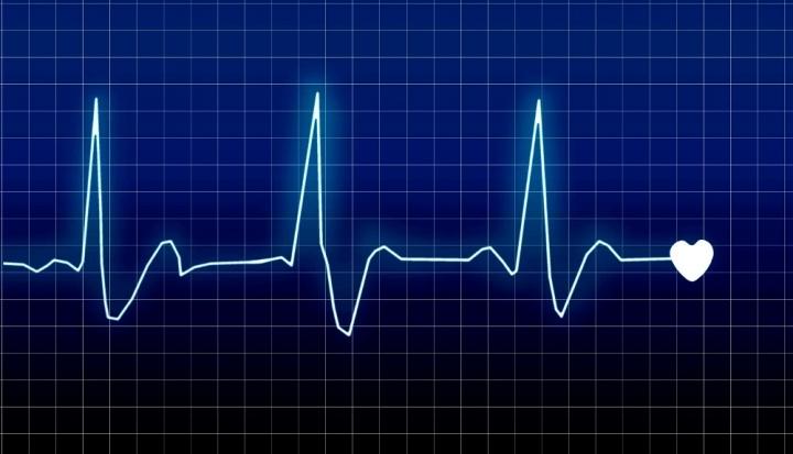 ritmo-cardiaco-010515